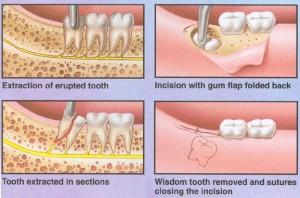chirurgiczne usunięcie zęba