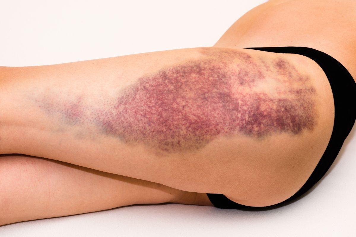 krwiak na nodze